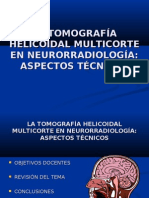 La Tomografa Helicoidal Multicorte en Neuro Definitivo