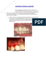 Gingival Depigmentation Technique Using Bur Abrasion