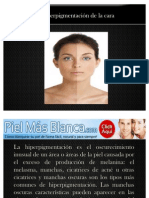 Hiperpigmentación de la cara