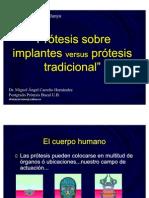 implantes vs tradicional