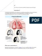 What is a Pneumothorax