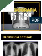 RADIOLOGIA TORAX