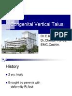 Congenital Vertical Talus