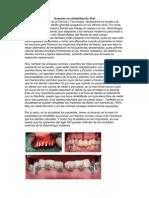 Avances en rehabilitación Oral