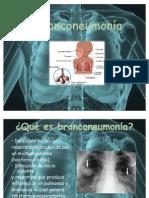 _Bronconeumonía.pptx_