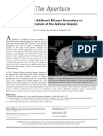 Diagnosis Addison s Disease Secondary To