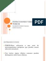 Infecciones Virales Torch