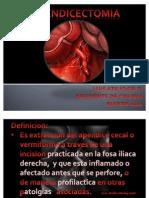 Apendicectomia