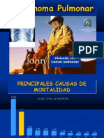 Carcinoma Pulmonar.1
