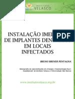 INSTALAÇÃO IMEDIATA DE IMPLANTES DENTÁRIOS EM LOCAIS INFECTADOS