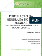 PERFURAÇÃO DA MEMBRANA DO SEIO MAXILAR