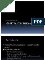 Hipertension renovascular
