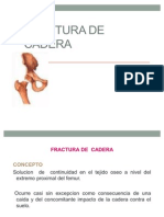 Fractura de Cadera D.manaiza