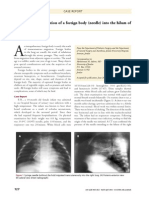 Trans Cutaneous Migration of a Foreign Body (Needle) Into the Hilum of the Lung of an Infant