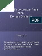 Disritmia