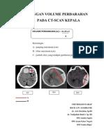 Perhitungan Volume Perdarahan Otak Pada Ct