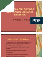 Citologia en Lesiones Del Tracto Urinario Superior