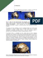 Anatomia Do Coracao