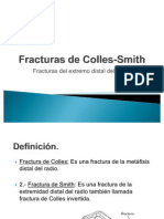 Fracturas de Colles-Smith[1]