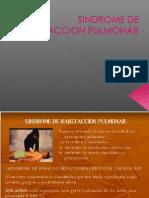 6.-Rarefaccion Pulmonar