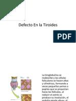 Defecto en La Tiroides