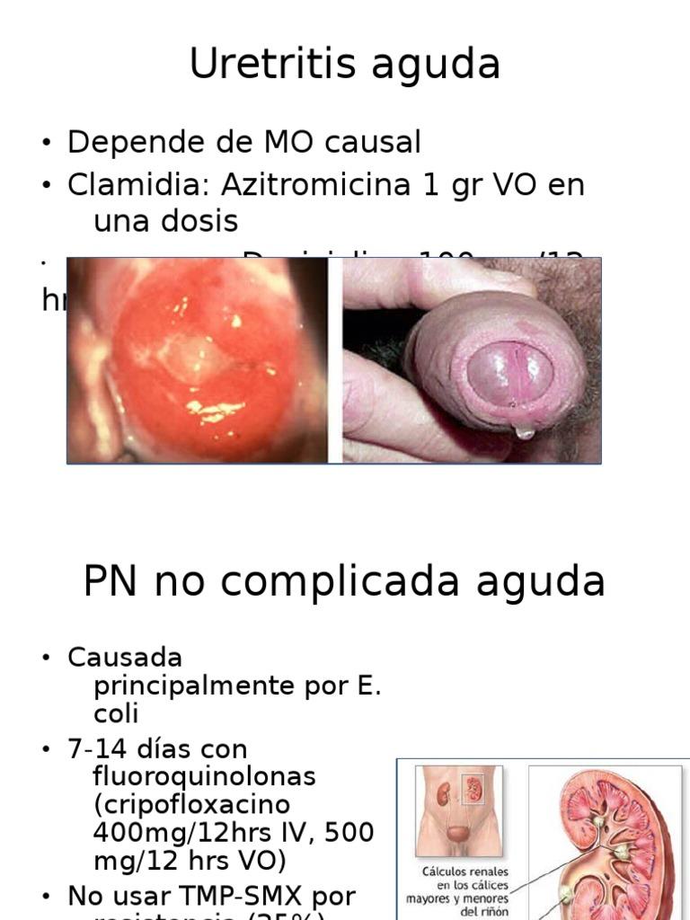 clamidia y uretritis