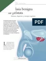HIiperplasia Benigna de Prostata
