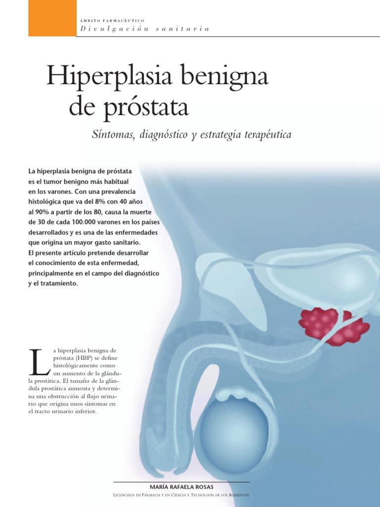 prueba de reflejo psal del antígeno prostático libre