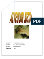 alveoloplastia