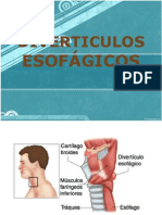 Copia de DIVERTICULOS ESOFÁGICOS