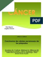 Carcinoma..