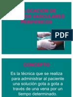 Colocacion de Accesos Vasculares Perifericos