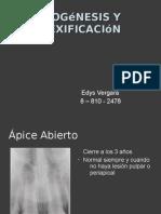 Apexogénesis y apexificación