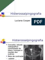 Histerossalpingografia