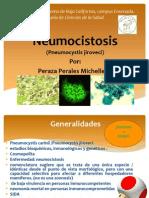 Neumocistosis