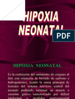 Hipoxia Neonatal