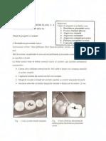 Cariologie Cav Cls 1