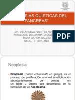 NEOPLASIAS_QUISTS