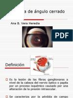 Glaucoma de Ngulo Cerrado y Abierto
