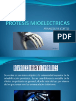 PROTESIS MIOELECTRICAS
