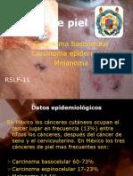 18-Cancer de Piel