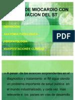 Infarto de Miocardio Con Elevacion Del St