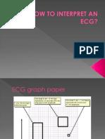 How to Interpret an Ecg