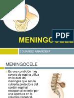 meningocele