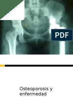 Osteoporosis y Enfermedad Periodontal