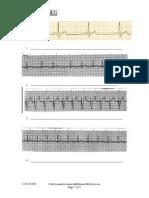 EKG Practice