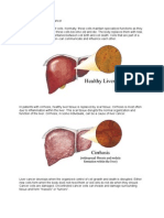Pa Tho Physiology of Liver Cancer
