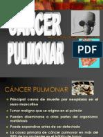 Cancer Pulmonar UNPRG
