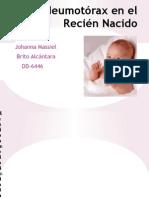 Neumotórax en el Recién Nacido