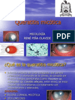 Queratitis micotica. rené